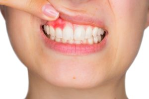 Cum calmezi durerea de dinti?