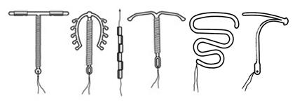 tipuri de sterilet