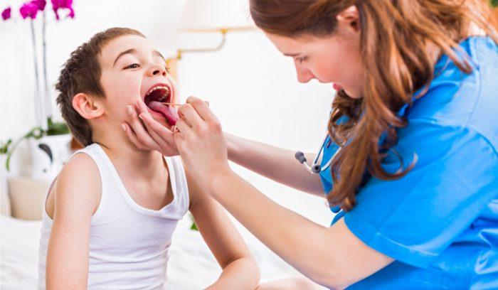 Depuneri galbene pe limba copilului