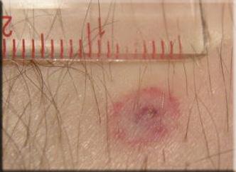 infectie de la capusa