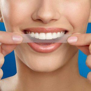 Read more about the article Tratament pentru albirea dintilor acasa cu rezultate garantate