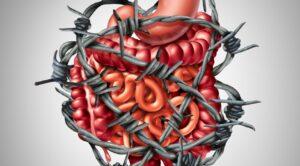 Sindromul intestinului iritabil – simptome si tratament