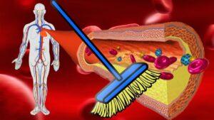 8 remedii naturiste eficiente pentru scaderea colesterolului din sange