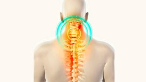 Read more about the article Spondiloza cervicala: cauze, simptome, metode de tratament si prevenire