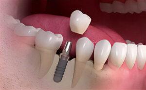Read more about the article 8 răspunsuri despre implanturile dentare oferite de Total Dent Sibiu